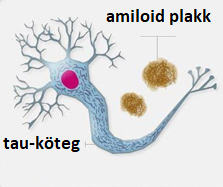 alzhistology.png