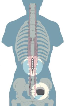 epidural_stimulator.png